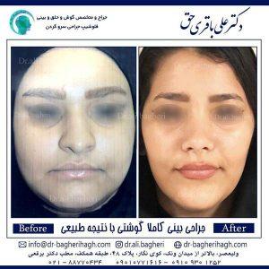 جراحی-بینی-کاملا-گوشتی-1