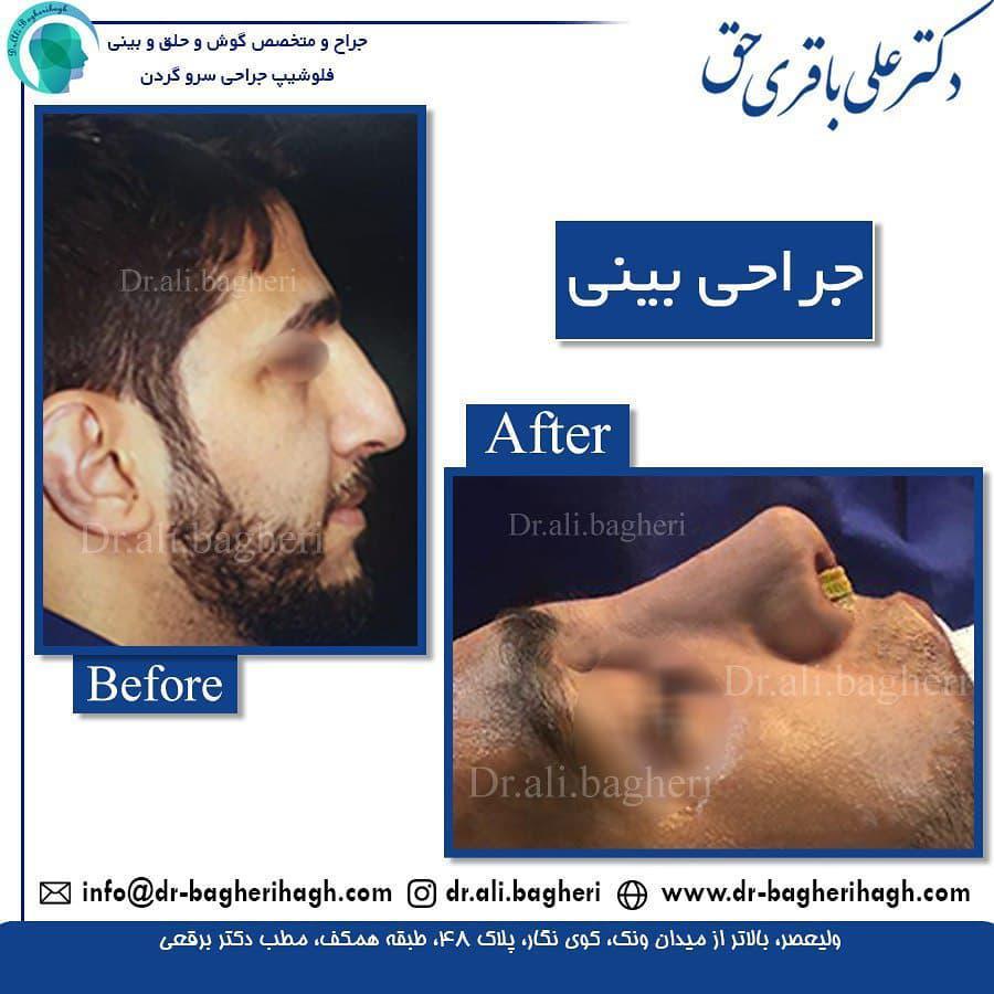جراحی بینی به روش باز