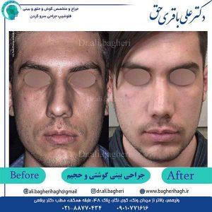 جراحی-بینی-گوشتی-و-حجیم