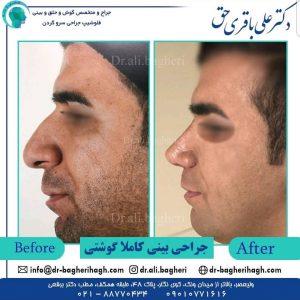تفاوت جراحی بینی در مردان و زنان 1