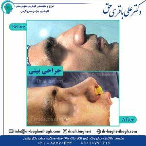 جراحی-بینی-11