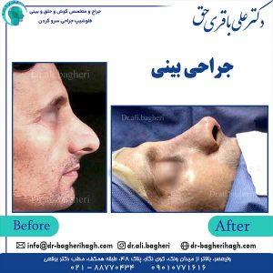 جراحی-بینی-4