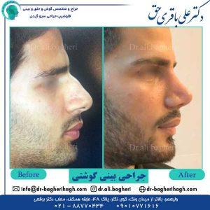 جراحی-بینی-گوشتی