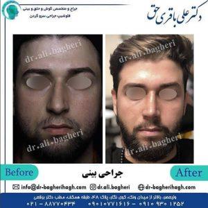 جراحی بینی 11