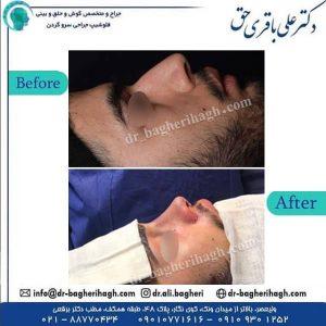 جراحی بینی 8