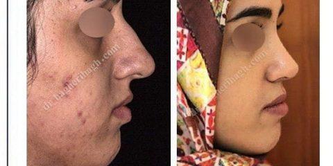 بهترین دکتر جراح بینی در تهران