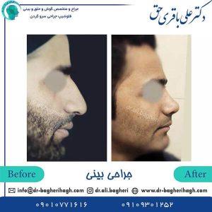 آگاهی های ضروری قبل جراحی بینی